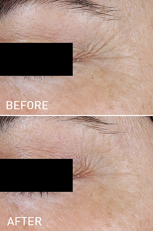 Natural Skin Detoxification